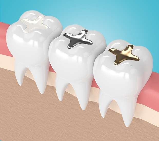 Santa Ana Composite Fillings
