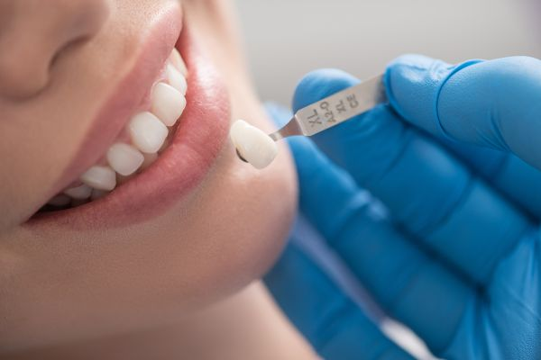Do Veneers Protect Teeth From Cavities?